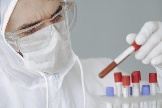 Terkini: 9 juta orang terjangkit virus corona di dunia