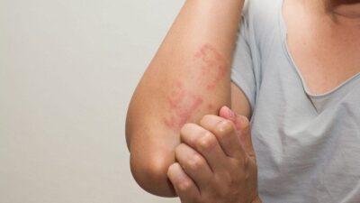 Atasi gatal alergi dengan 5 bahan alami ini